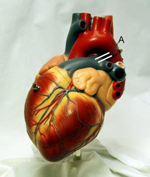 Холестерол - причини и последствия