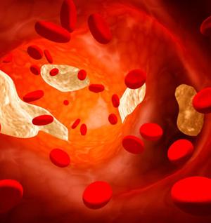 Как да понижим холестерола