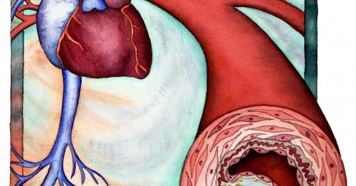 Инсулт и инфаркт в резултат на висок холестерол