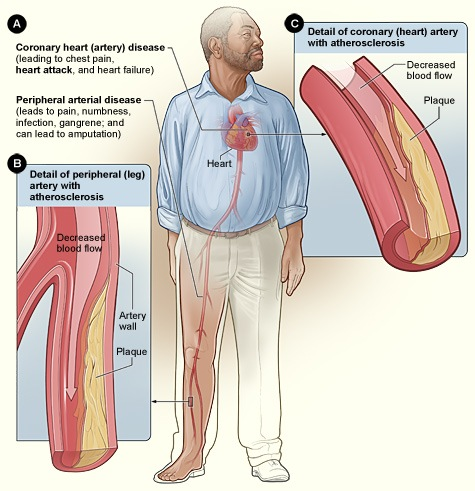 Ако имате завишени нива на холестерол в кръвта спрете да пиете и да пушите