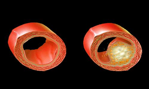 Холестеролът причинява проблеми свързани със сърдечно-съдовата система.